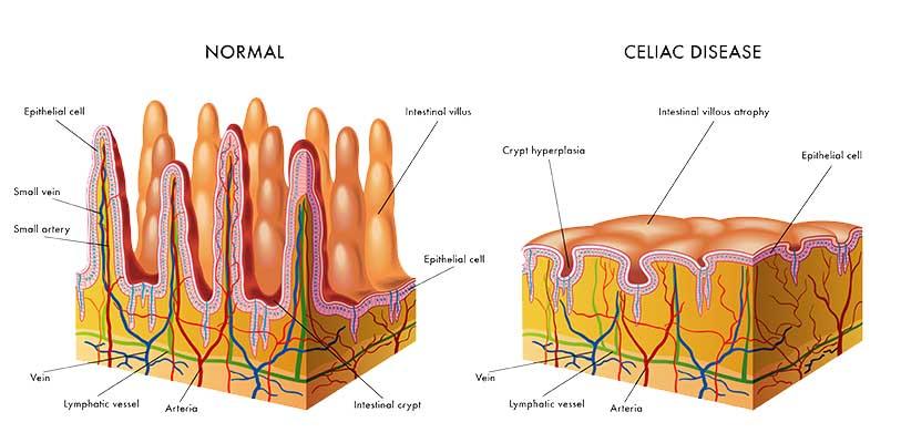 simptome celiachie intestin subtire