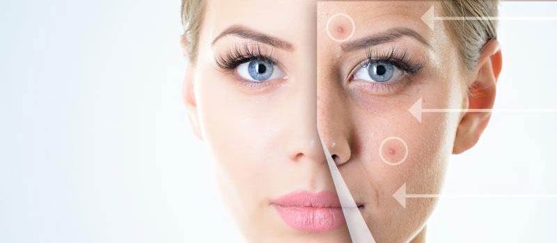 glutenul cauza favorizanta a acneei