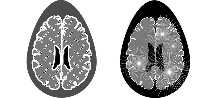Legatura dintre boala celiaca si scleroza multipla